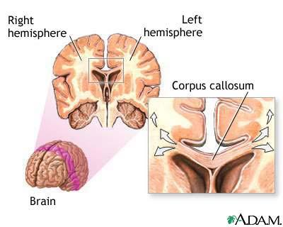 corpus_callosum_of_the_brain_picture