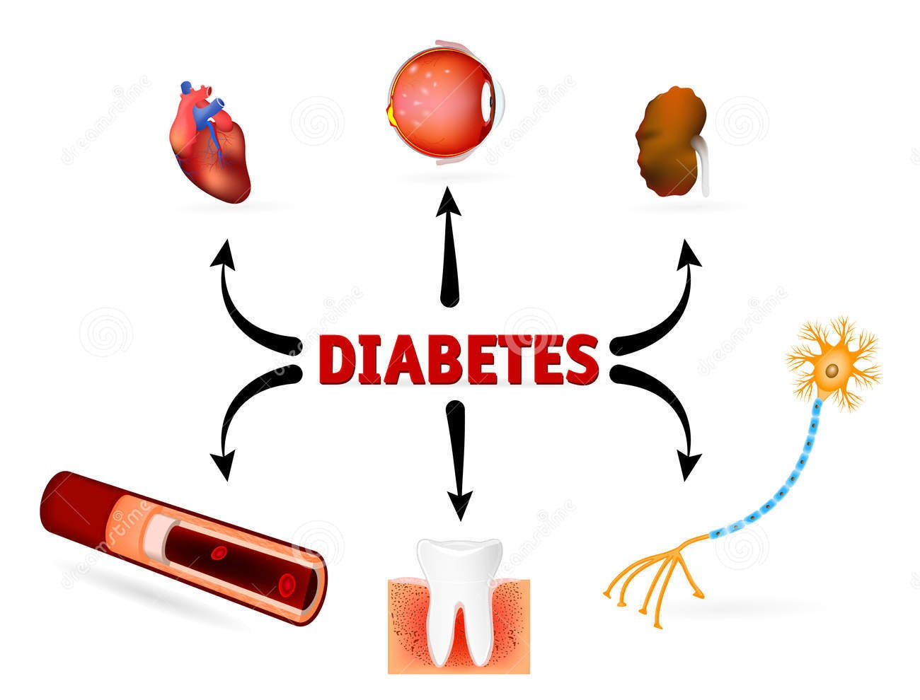 complications-diabetes-mellitus-such-as-blindness-heart-disease-kidney-failure-high-blood-pressure-46253965