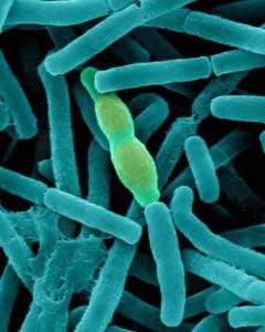 bacillus-anthracis-kunkel-21184bg-wm