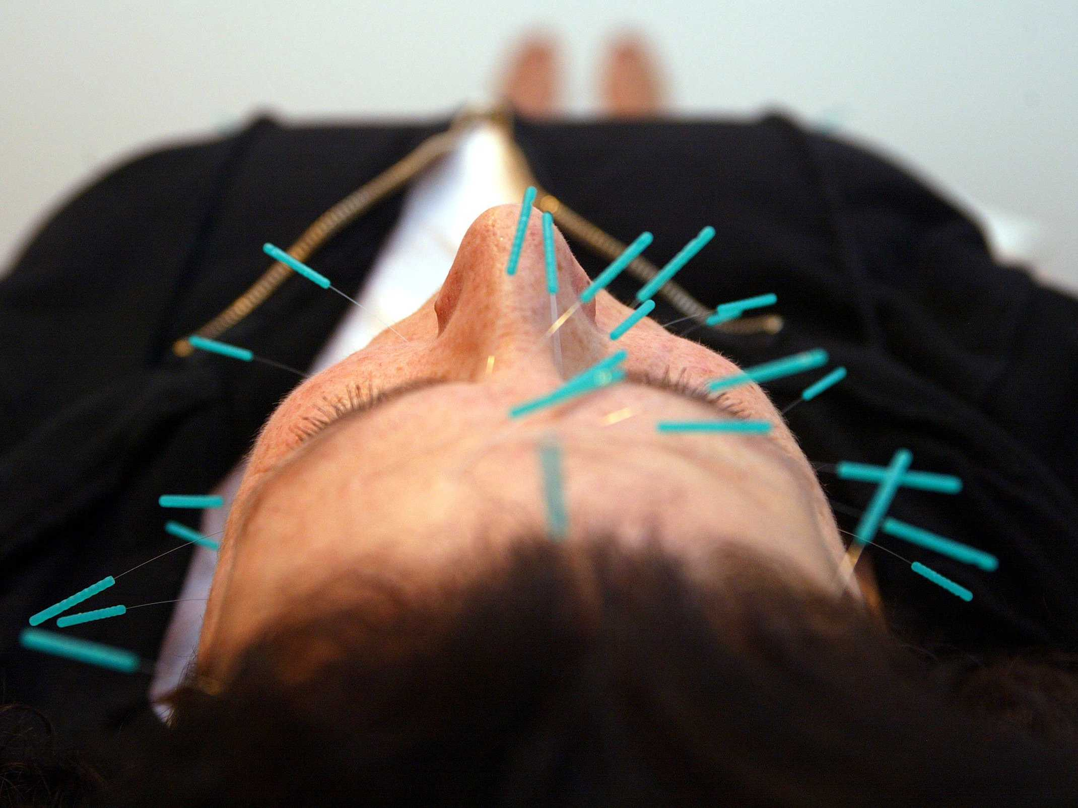 new-study-exposes-acupuncture-as-pseudoscience